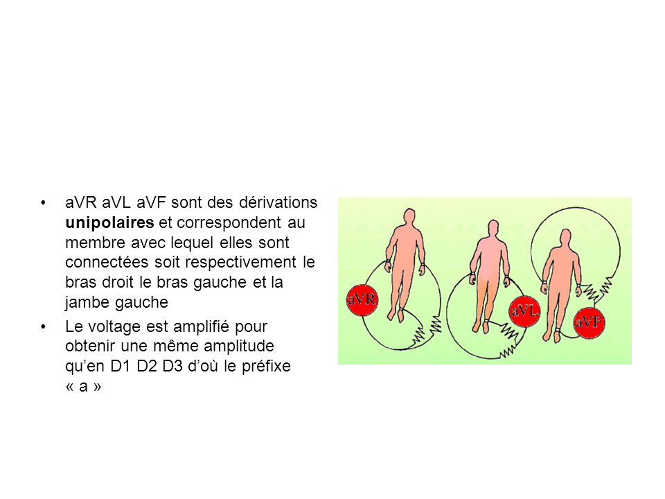 aVR aVL aVF sont des dérivations unipolaires et correspondent au membre avec lequel elles sont connectées soit respectivement le bras droit le bras ga