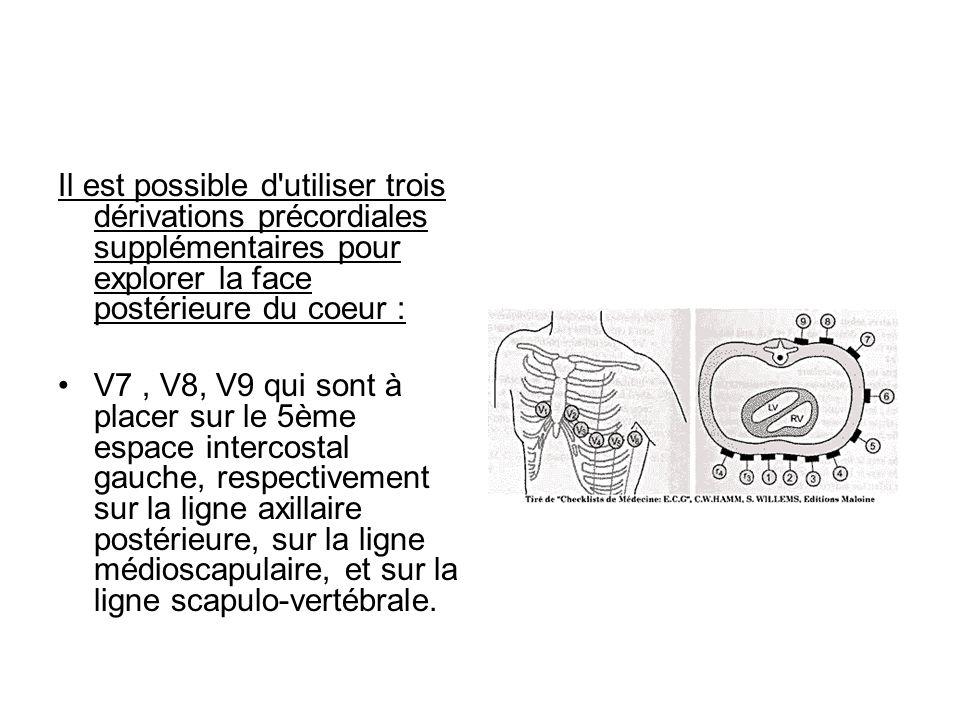 Il est possible d'utiliser trois dérivations précordiales supplémentaires pour explorer la face postérieure du coeur : V7, V8, V9 qui sont à placer su