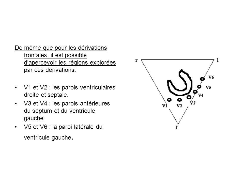 De même que pour les dérivations frontales, il est possible dapercevoir les régions explorées par ces dérivations: V1 et V2 : les parois ventriculaire