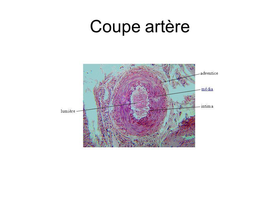 Coupe artère