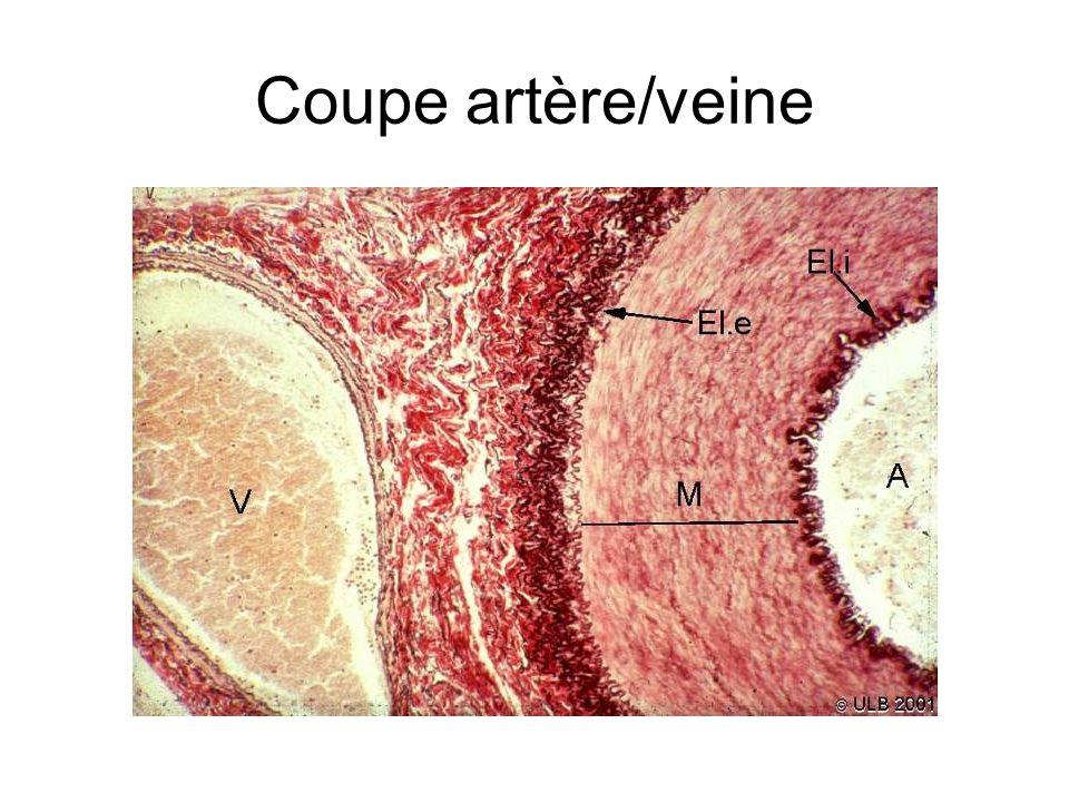 Coupe artère/veine