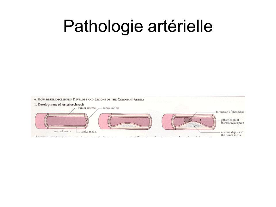 Pathologie artérielle