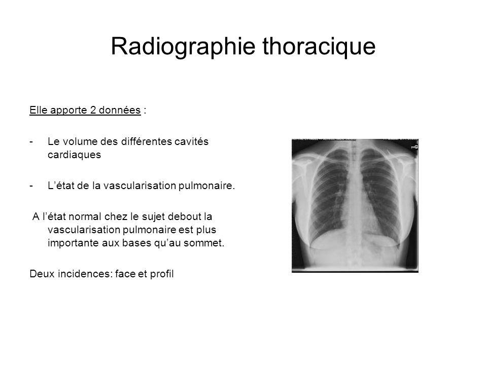 Radiographie thoracique Elle apporte 2 données : -Le volume des différentes cavités cardiaques -Létat de la vascularisation pulmonaire. A létat normal