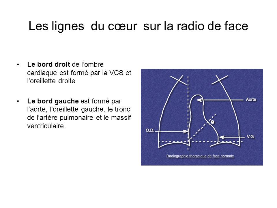 Les lignes du cœur sur la radio de face Le bord droit de lombre cardiaque est formé par la VCS et loreillette droite Le bord gauche est formé par laor