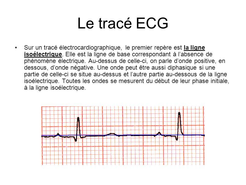 Le tracé ECG Sur un tracé électrocardiographique, le premier repère est la ligne isoélectrique. Elle est la ligne de base correspondant à labsence de