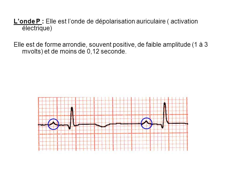 Londe P : Elle est londe de dépolarisation auriculaire ( activation électrique) Elle est de forme arrondie, souvent positive, de faible amplitude (1 à