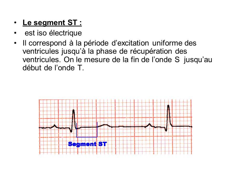 Le segment ST : est iso électrique Il correspond à la période dexcitation uniforme des ventricules jusquà la phase de récupération des ventricules. On