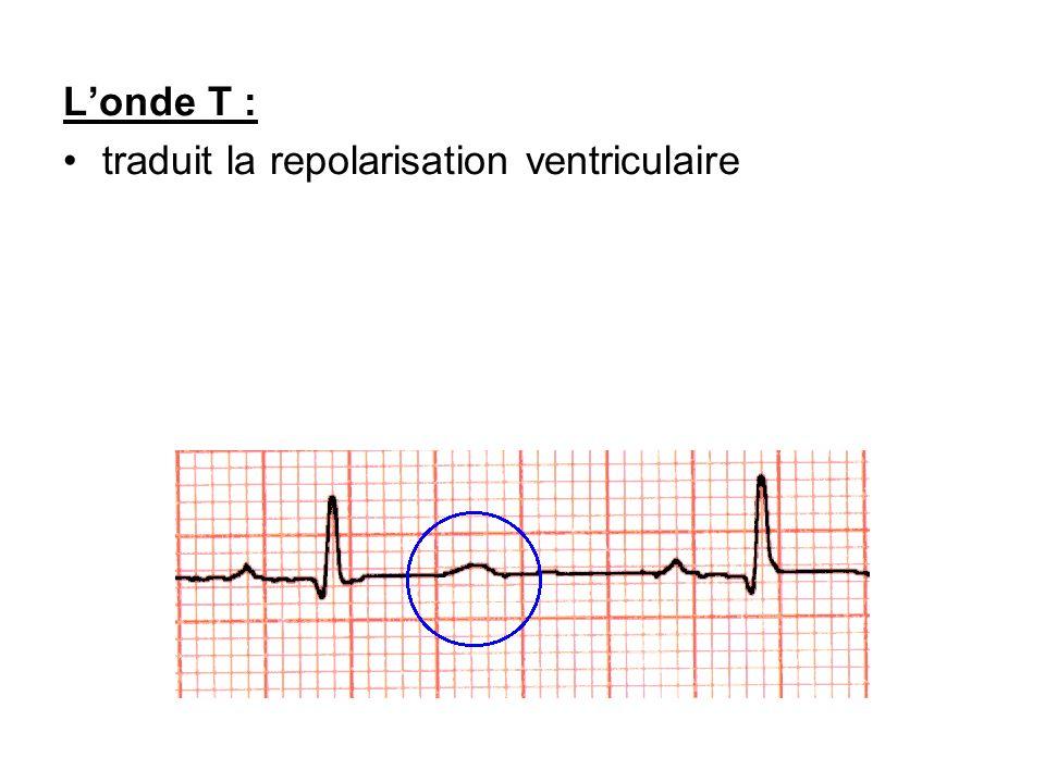 Londe T : traduit la repolarisation ventriculaire