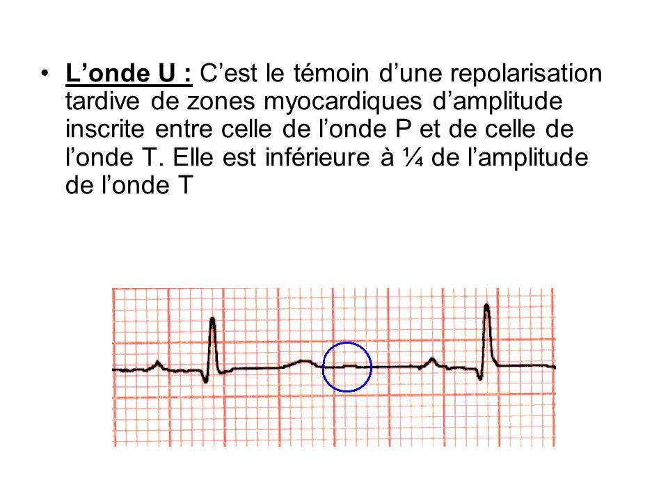 Londe U : Cest le témoin dune repolarisation tardive de zones myocardiques damplitude inscrite entre celle de londe P et de celle de londe T. Elle est