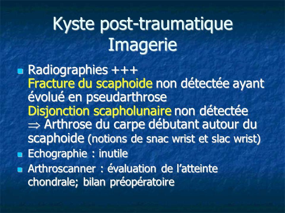 Kyste post-traumatique Imagerie Radiographies +++ Fracture du scaphoide non détectée ayant évolué en pseudarthrose Disjonction scapholunaire non détec