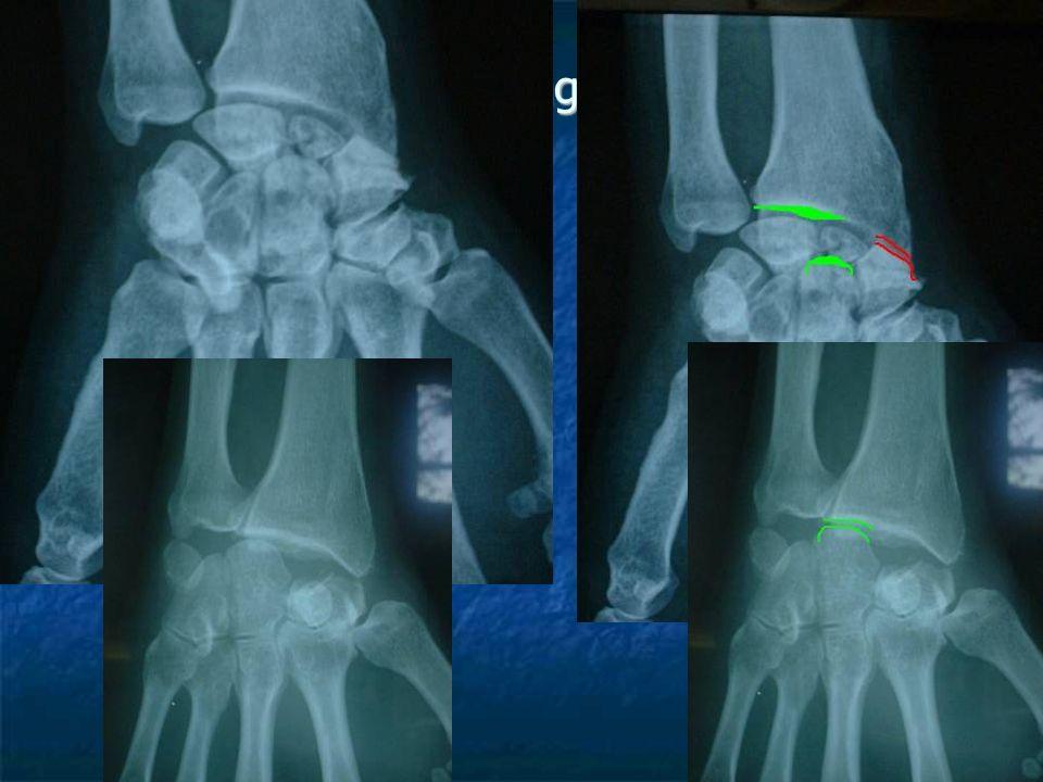 Résection de la 1 ère rangée des os du carpe