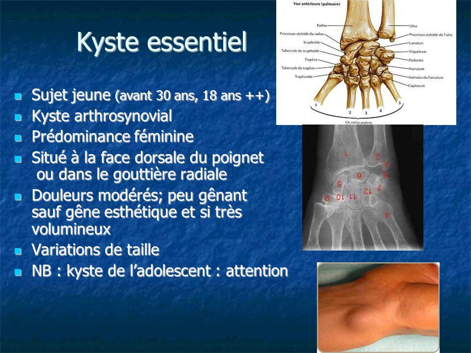 Kyste essentiel Sujet jeune (avant 30 ans, 18 ans ++) Sujet jeune (avant 30 ans, 18 ans ++) Kyste arthrosynovial Kyste arthrosynovial Prédominance fém