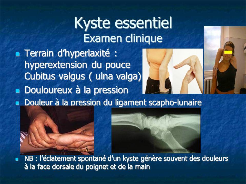 Kyste essentiel Examen clinique Terrain dhyperlaxité : hyperextension du pouce Cubitus valgus ( ulna valga) Terrain dhyperlaxité : hyperextension du p