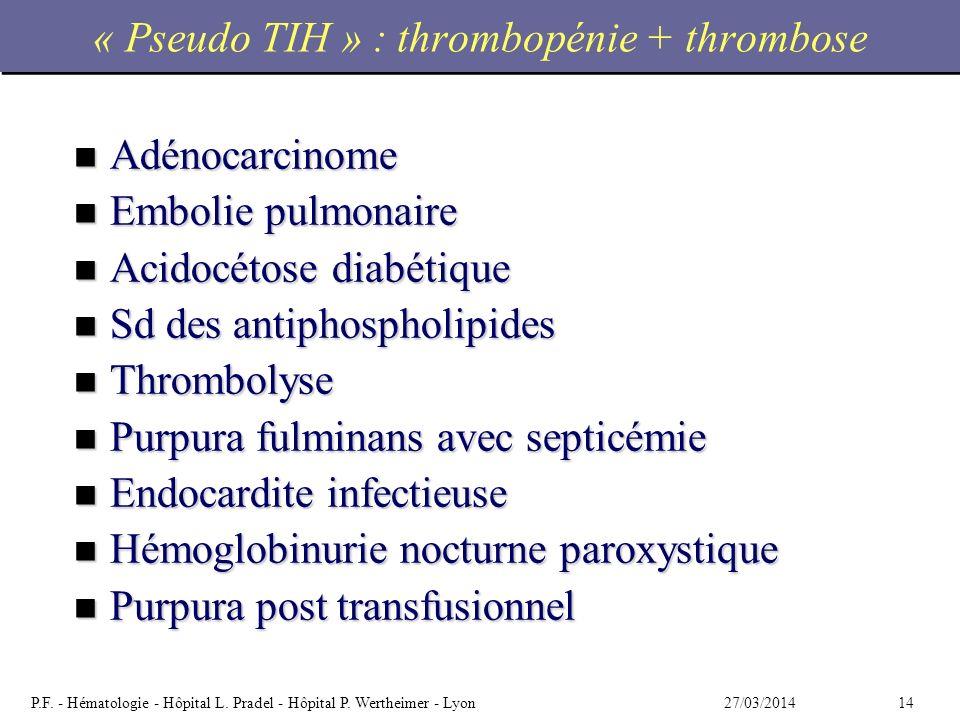 1427/03/2014P.F. - Hématologie - Hôpital L. Pradel - Hôpital P. Wertheimer - Lyon « Pseudo TIH » : thrombopénie + thrombose n Adénocarcinome n Embolie