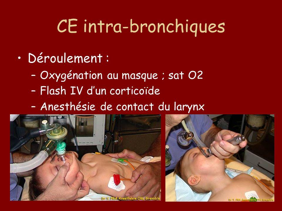 CE intra-bronchiques Déroulement : –Oxygénation au masque ; sat O2 –Flash IV dun corticoïde –Anesthésie de contact du larynx