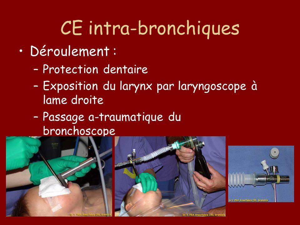 CE intra-bronchiques Déroulement : –Protection dentaire –Exposition du larynx par laryngoscope à lame droite –Passage a-traumatique du bronchoscope