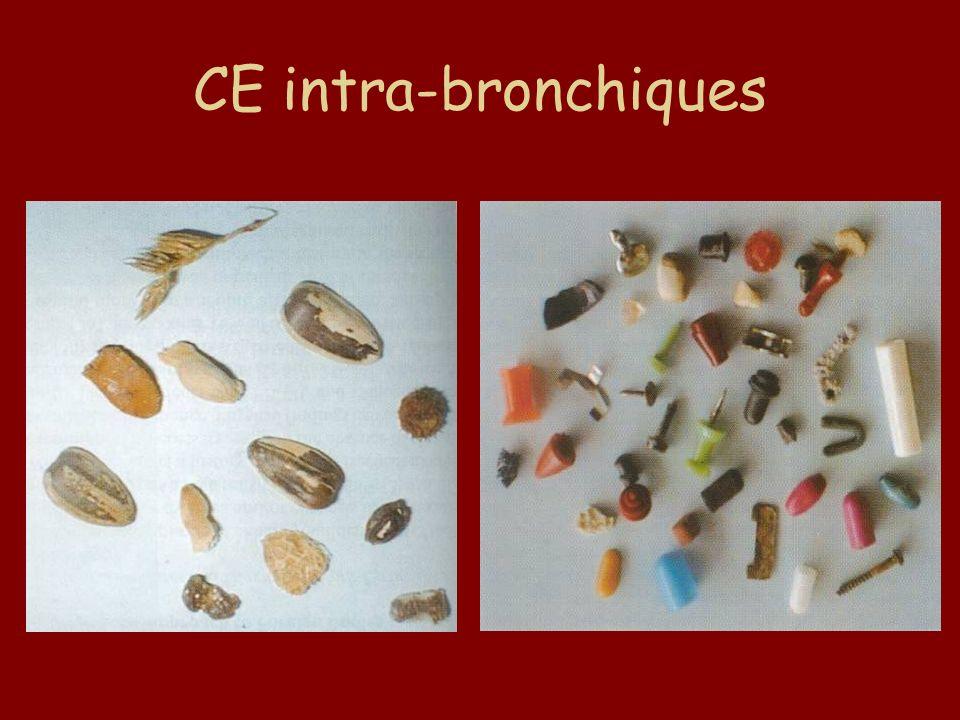 CE intra-bronchiques