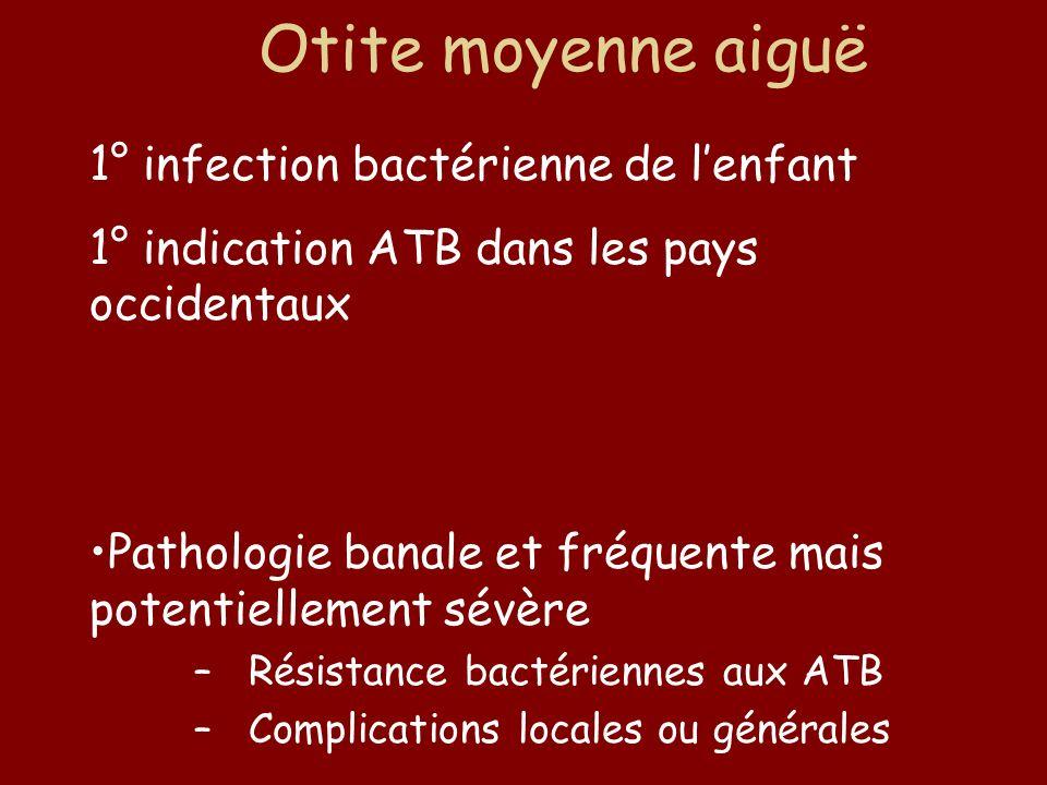 Otite moyenne aiguë 1° infection bactérienne de lenfant 1° indication ATB dans les pays occidentaux Inflammation de l'oreille moyenne avec épanchement