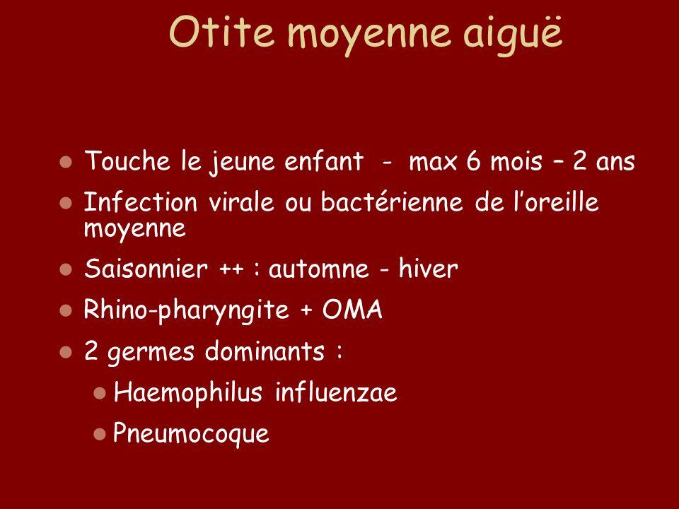 Touche le jeune enfant - max 6 mois – 2 ans Infection virale ou bactérienne de loreille moyenne Saisonnier ++ : automne - hiver Rhino-pharyngite + OMA