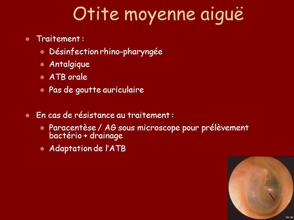 Traitement : Désinfection rhino-pharyngée Antalgique ATB orale Pas de goutte auriculaire En cas de résistance au traitement : Paracentèse / AG sous mi
