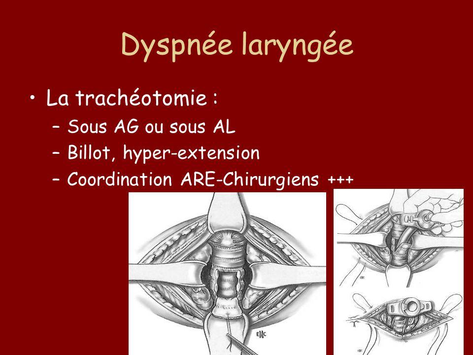 Dyspnée laryngée La trachéotomie : –Sous AG ou sous AL –Billot, hyper-extension –Coordination ARE-Chirurgiens +++