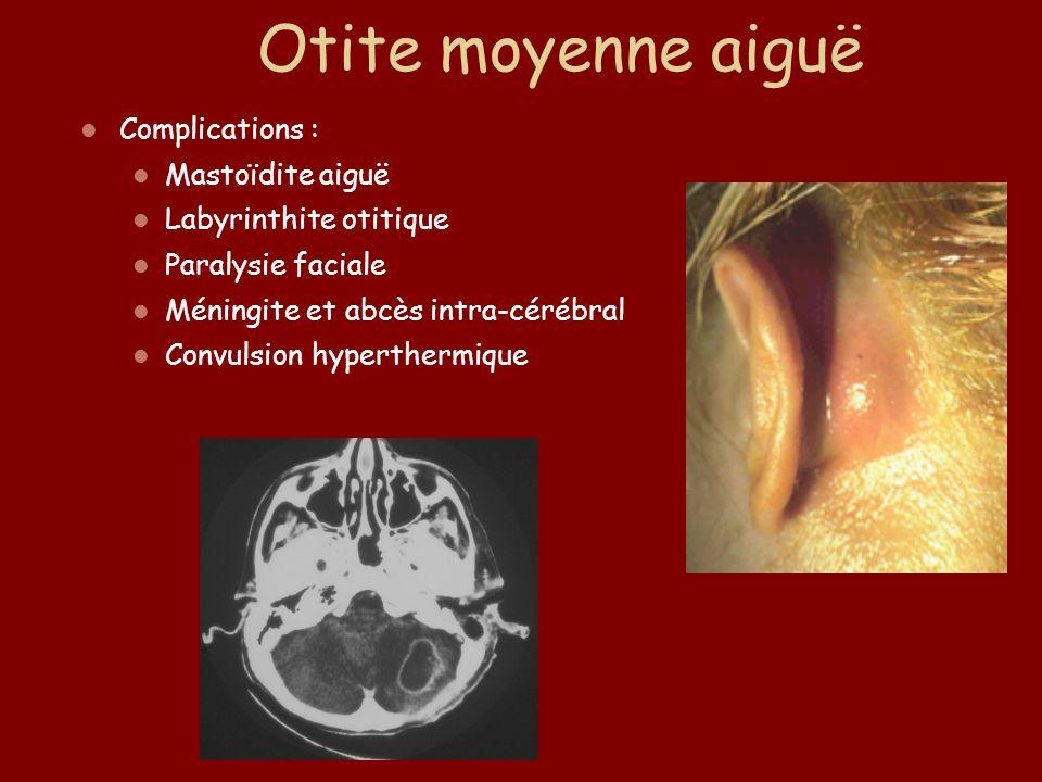 Otite moyenne aiguë Complications : Mastoïdite aiguë Labyrinthite otitique Paralysie faciale Méningite et abcès intra-cérébral Convulsion hyperthermiq