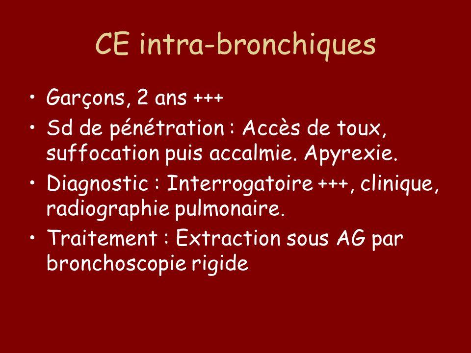 CE intra-bronchiques Garçons, 2 ans +++ Sd de pénétration : Accès de toux, suffocation puis accalmie. Apyrexie. Diagnostic : Interrogatoire +++, clini