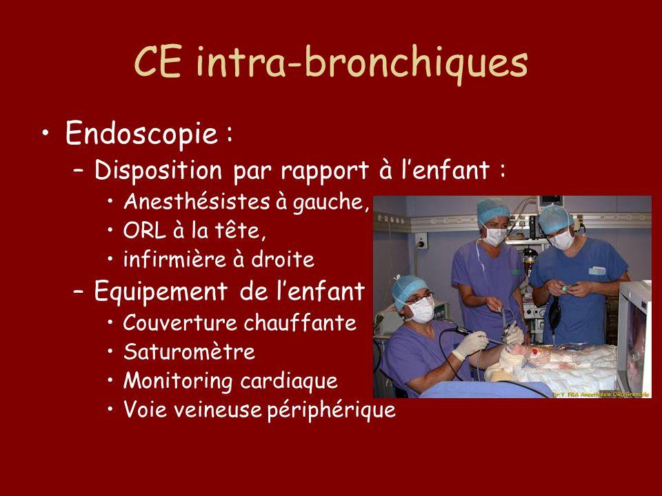 CE intra-bronchiques Endoscopie : –Disposition par rapport à lenfant : Anesthésistes à gauche, ORL à la tête, infirmière à droite –Equipement de lenfa