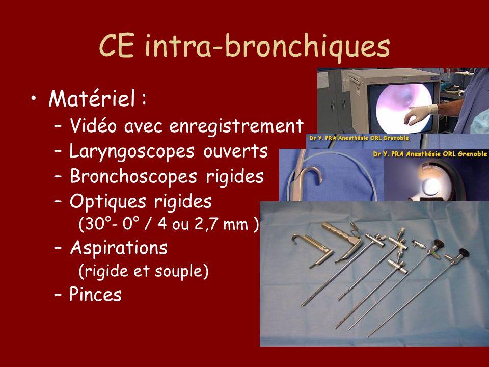 CE intra-bronchiques Matériel : –Vidéo avec enregistrement –Laryngoscopes ouverts –Bronchoscopes rigides –Optiques rigides (30°- 0° / 4 ou 2,7 mm ) –A