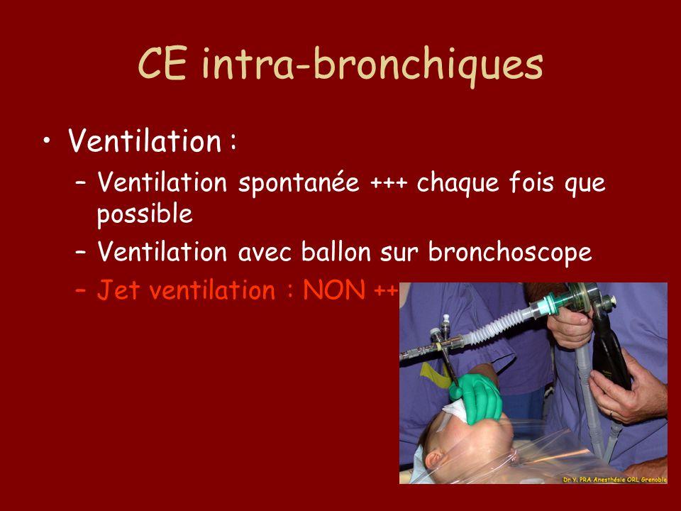 CE intra-bronchiques Ventilation : –Ventilation spontanée +++ chaque fois que possible –Ventilation avec ballon sur bronchoscope –Jet ventilation : NO