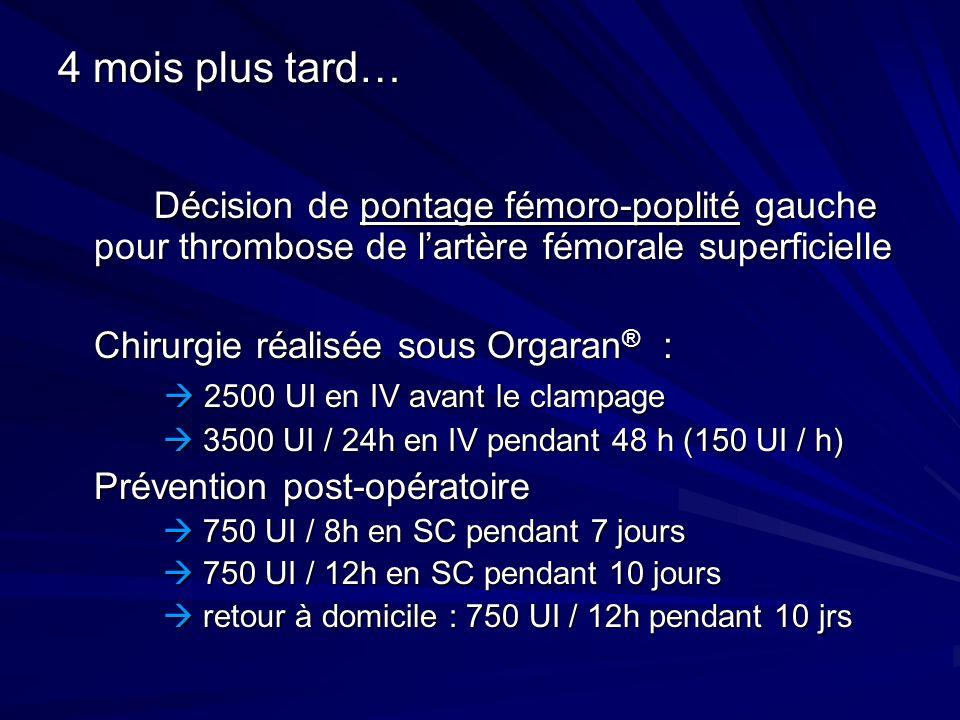 4 mois plus tard… Décision de pontage fémoro-poplité gauche pour thrombose de lartère fémorale superficielle Chirurgie réalisée sous Orgaran ® : 2500
