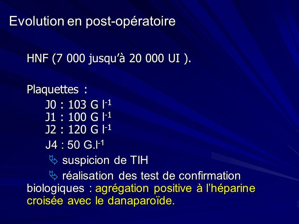 Evolution en post-opératoire HNF (7 000 jusquà 20 000 UI ). Plaquettes : J0 : 103 G l -1 J1 : 100 G l -1 J2 : 120 G l -1 J4 : 50 G.l -1 J4 : 50 G.l -1