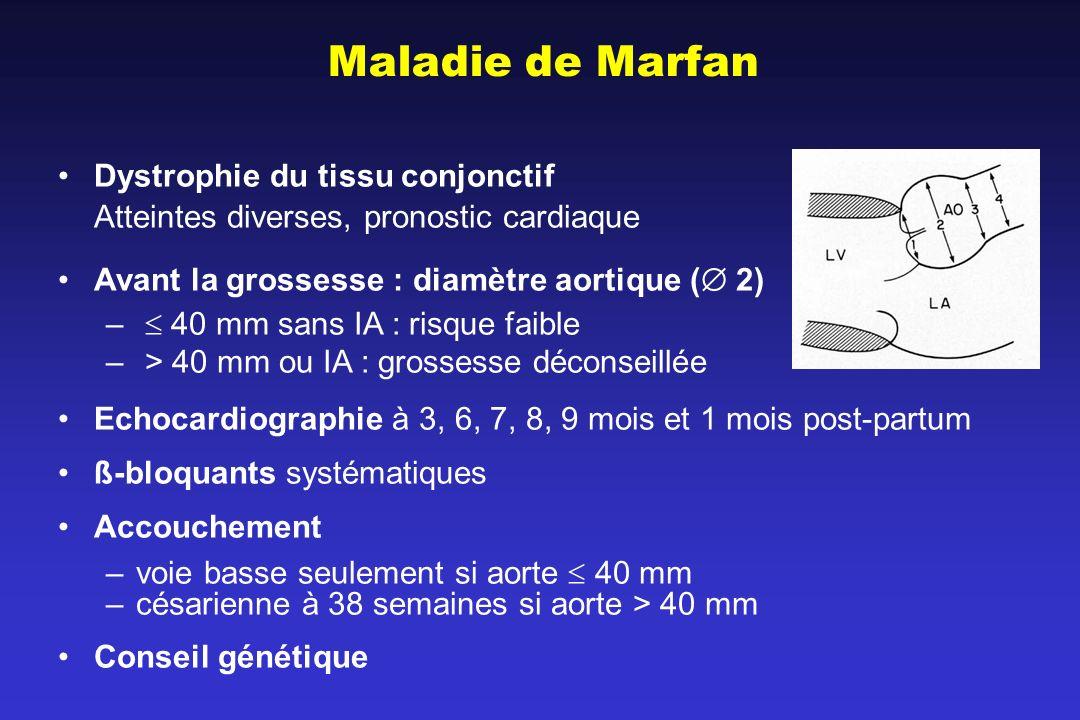 Maladie de Marfan Dystrophie du tissu conjonctif Atteintes diverses, pronostic cardiaque Avant la grossesse : diamètre aortique ( 2) – 40 mm sans IA :
