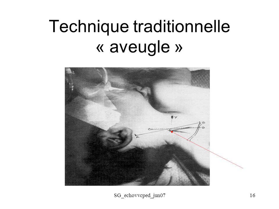 SG_echovvcped_jun0716 Technique traditionnelle « aveugle »