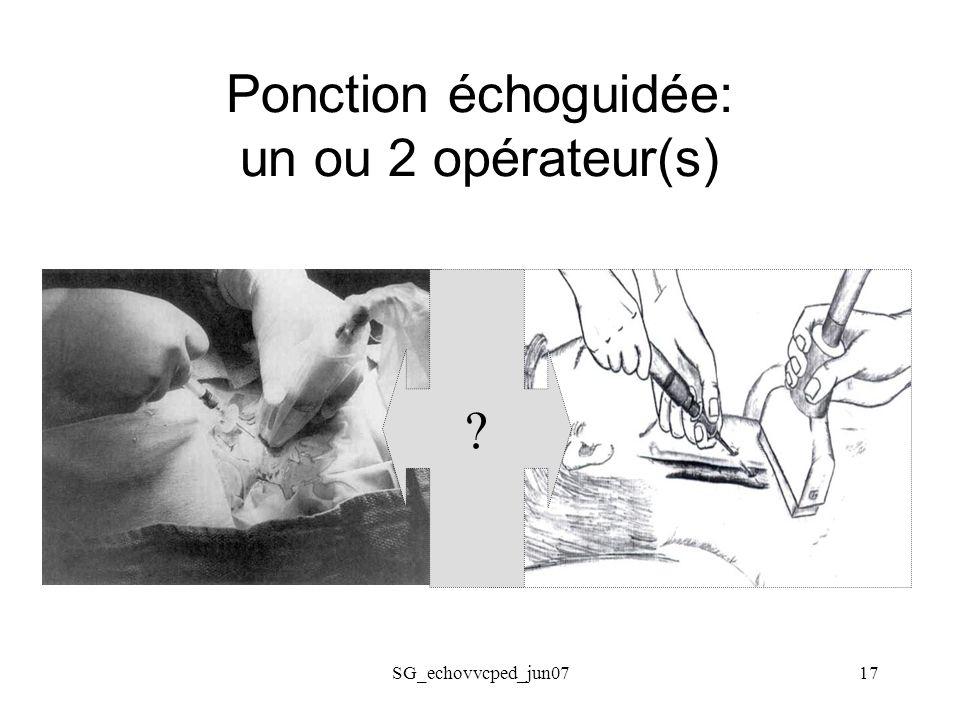 SG_echovvcped_jun0717 Ponction échoguidée: un ou 2 opérateur(s) ?