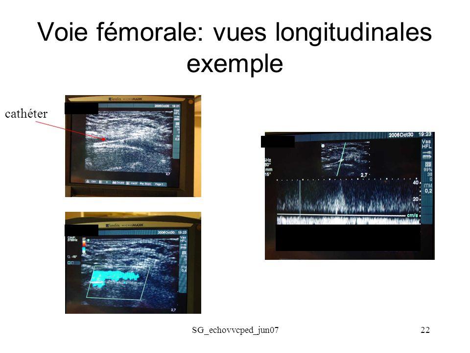 SG_echovvcped_jun0722 Voie fémorale: vues longitudinales exemple cathéter