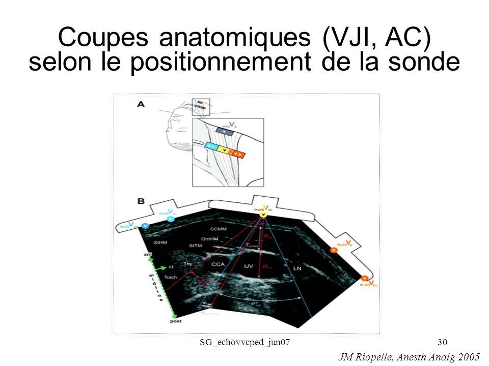 SG_echovvcped_jun0730 Coupes anatomiques (VJI, AC) selon le positionnement de la sonde JM Riopelle, Anesth Analg 2005