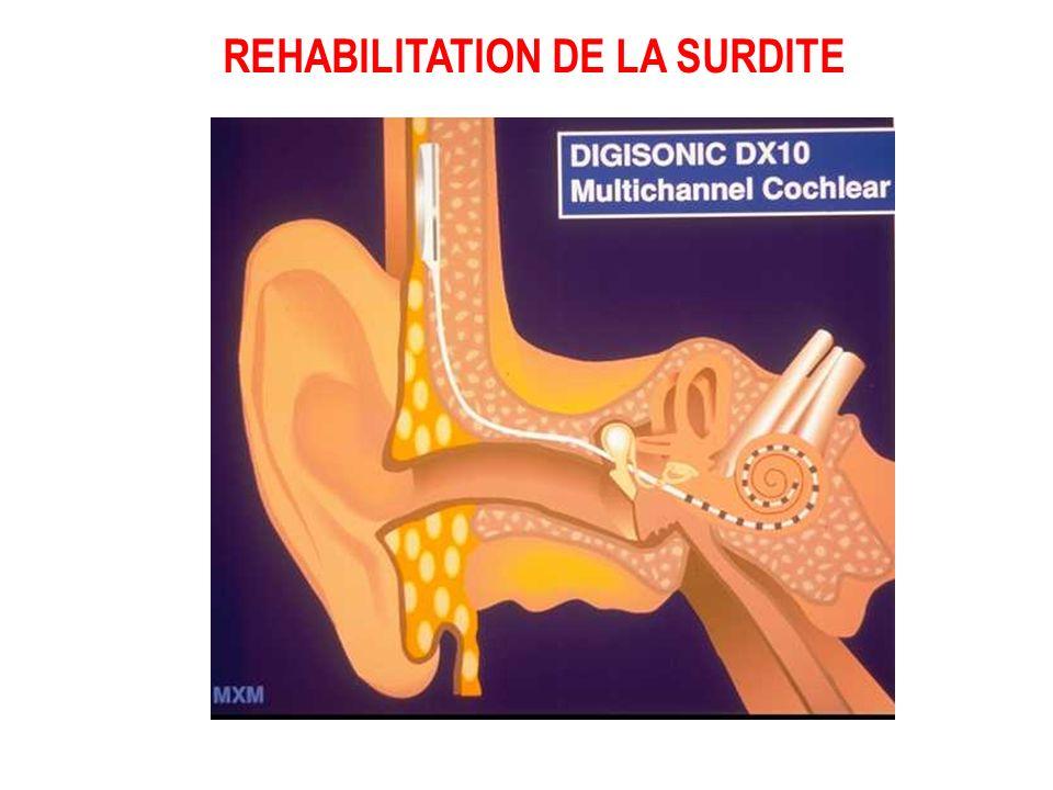 - Amplification du son… - Conduction osseuse… - Amplification mécanique sur la chaîne des osselets… - Stimulation électrique..... des cellules nerveus