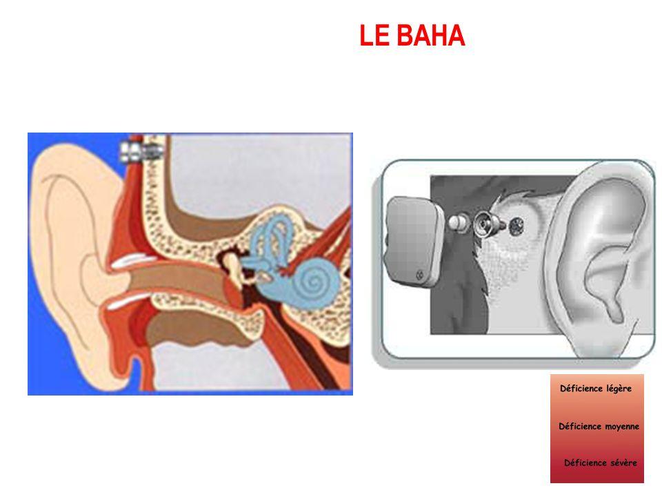 Lunettes à conduction osseuse Vibrateur à ancrage osseux BAHA AUDIANT REHABILITATION DE LA SURDITE