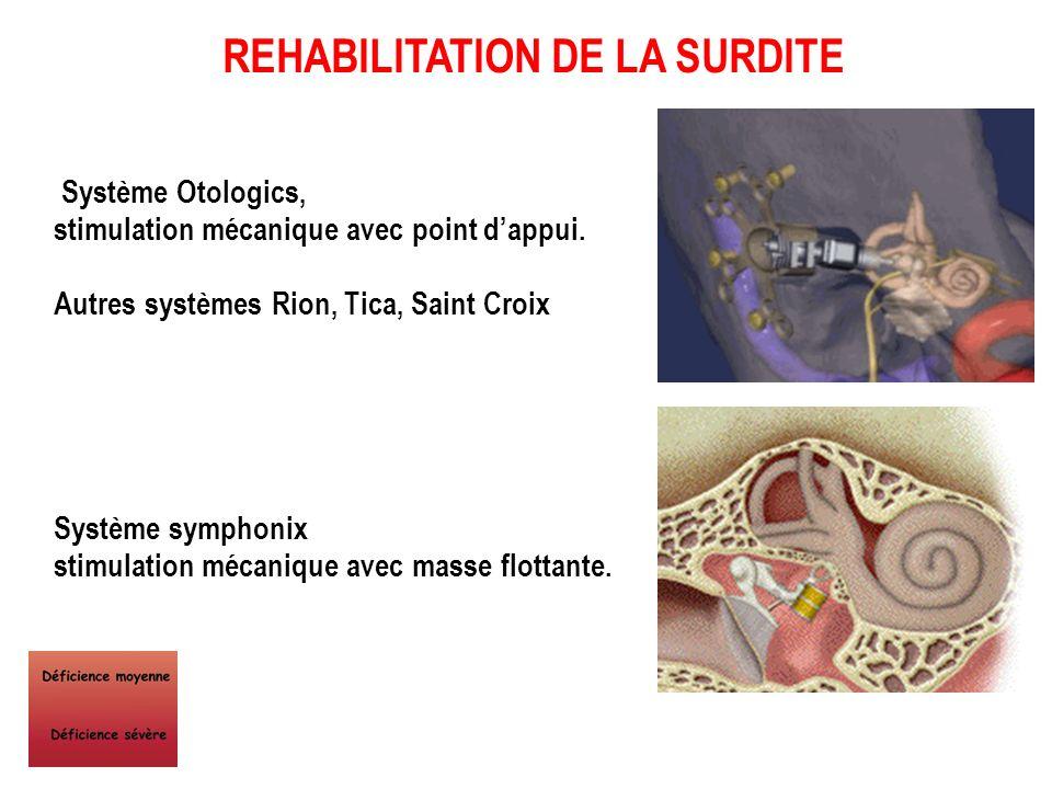 - Amplification du son… - Conduction osseuse… - Amplification mécanique sur la chaîne des osselets..... par des vibrateurs, - piezo-électriques, - éle