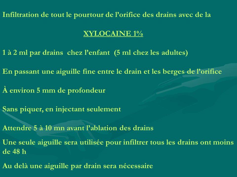 Infiltration de tout le pourtour de lorifice des drains avec de la XYLOCAINE 1% 1 à 2 ml par drains chez lenfant (5 ml chez les adultes) En passant un