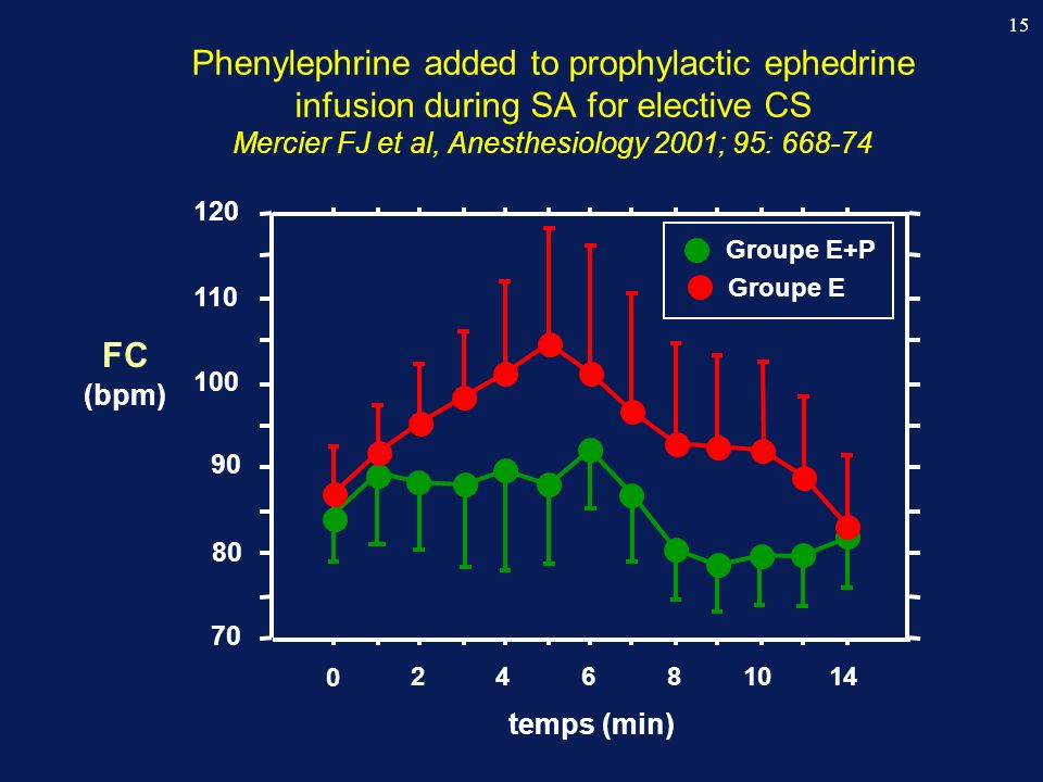 15 0 24681014 temps (min) 70 80 90 100 110 120 Groupe E+P Groupe E FC (bpm) Phenylephrine added to prophylactic ephedrine infusion during SA for elect