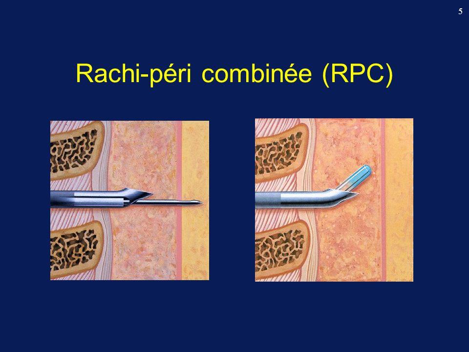 Comparison of the time to peak pressor effect of phenylephrine and ephedrine during SA for CS Thomas DG & Gardner S, CARO-OAA 2004: #2 (IJOA) Pic deffet vasopresseur : (Finapress, Ohmeda) Phénylephrine (100 µg): 27 sec (IQR 25-29) Ephédrine (10 mg): 78 sec (IQR 49-92)