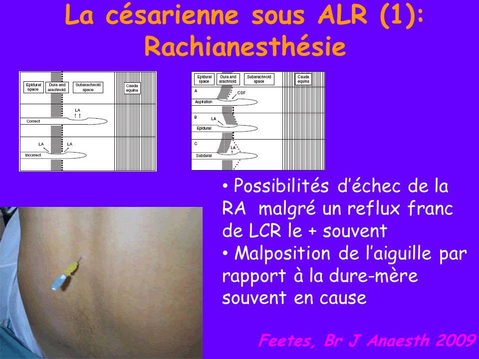 La césarienne sous ALR (5): Rachianesthésie Etude prospective randomisée: 105 cas Césarienne sous RA : intérêt de ladjonction de 100 mg de MgSO 4 en intrathecal pour lanalgésie post opératoire Morphine 100 mcg + MgSO 4 100 mg prolonge lanalgésie sans hausse des effets 2 aires Graab, AFAR 2009