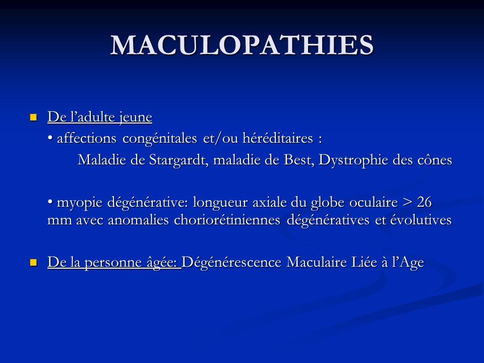 MACULOPATHIES De ladulte jeune De ladulte jeune affections congénitales et/ou héréditaires : affections congénitales et/ou héréditaires : Maladie de S