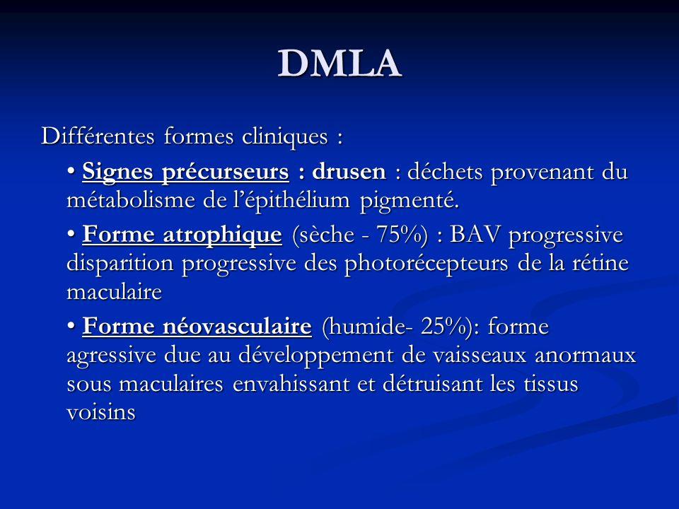 DMLA Différentes formes cliniques : Signes précurseurs : drusen : déchets provenant du métabolisme de lépithélium pigmenté. Signes précurseurs : druse