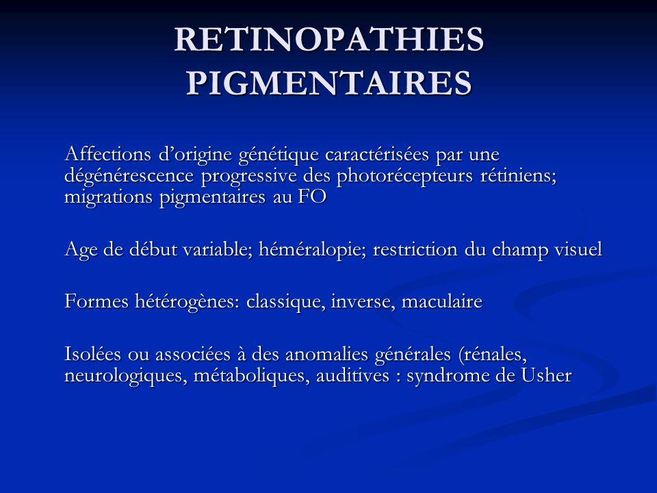 RETINOPATHIES PIGMENTAIRES Affections dorigine génétique caractérisées par une dégénérescence progressive des photorécepteurs rétiniens; migrations pi