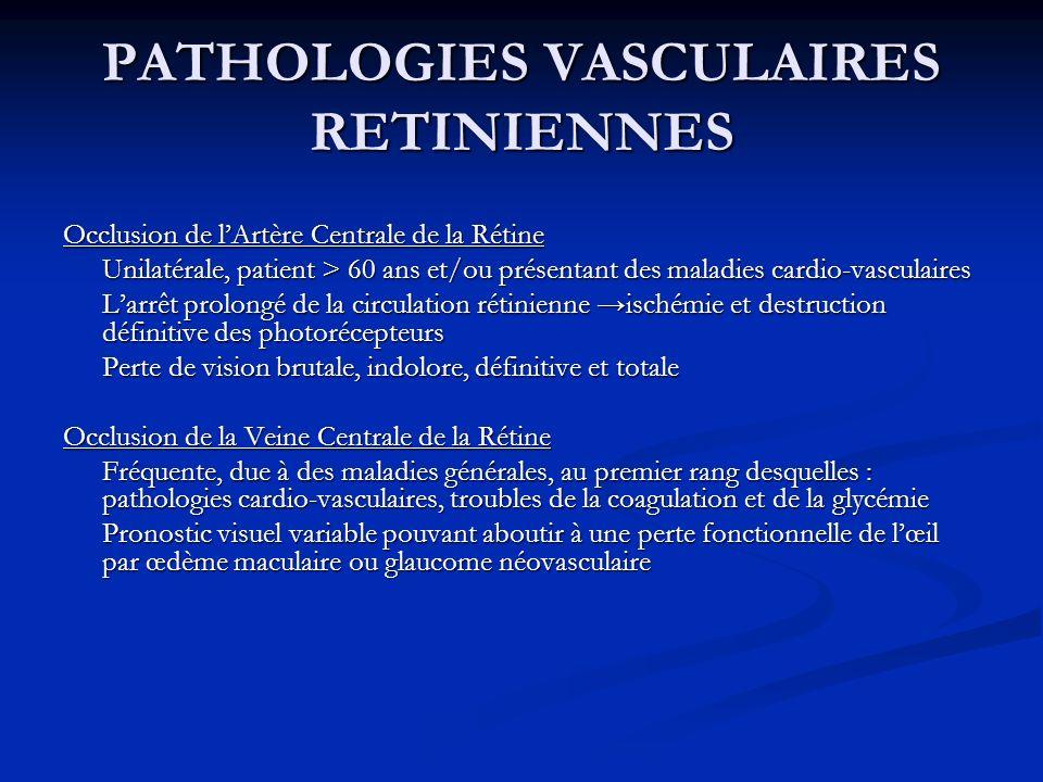 PATHOLOGIES VASCULAIRES RETINIENNES Occlusion de lArtère Centrale de la Rétine Unilatérale, patient > 60 ans et/ou présentant des maladies cardio-vasc