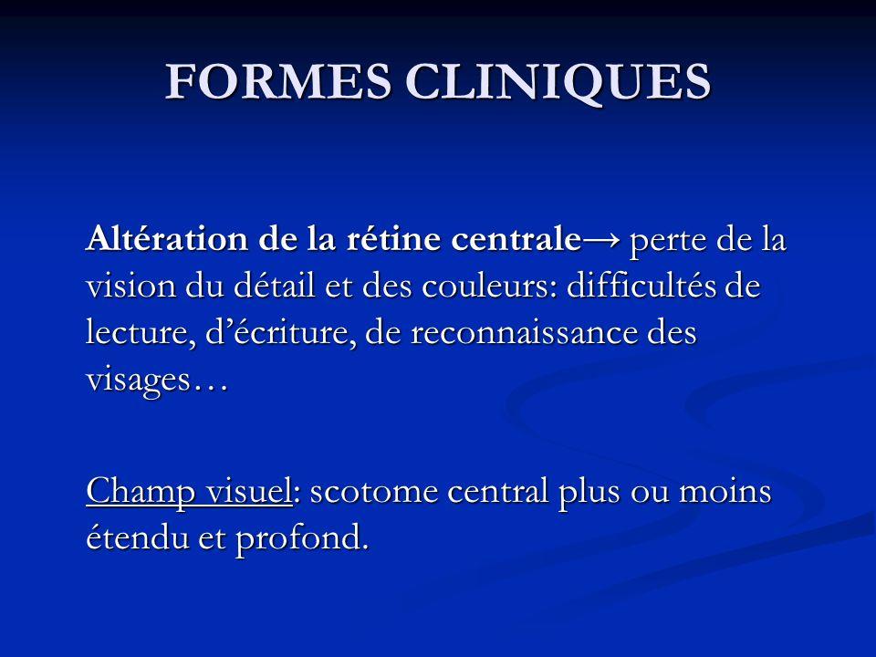 FORMES CLINIQUES Altération de la rétine centrale perte de la vision du détail et des couleurs: difficultés de lecture, décriture, de reconnaissance d