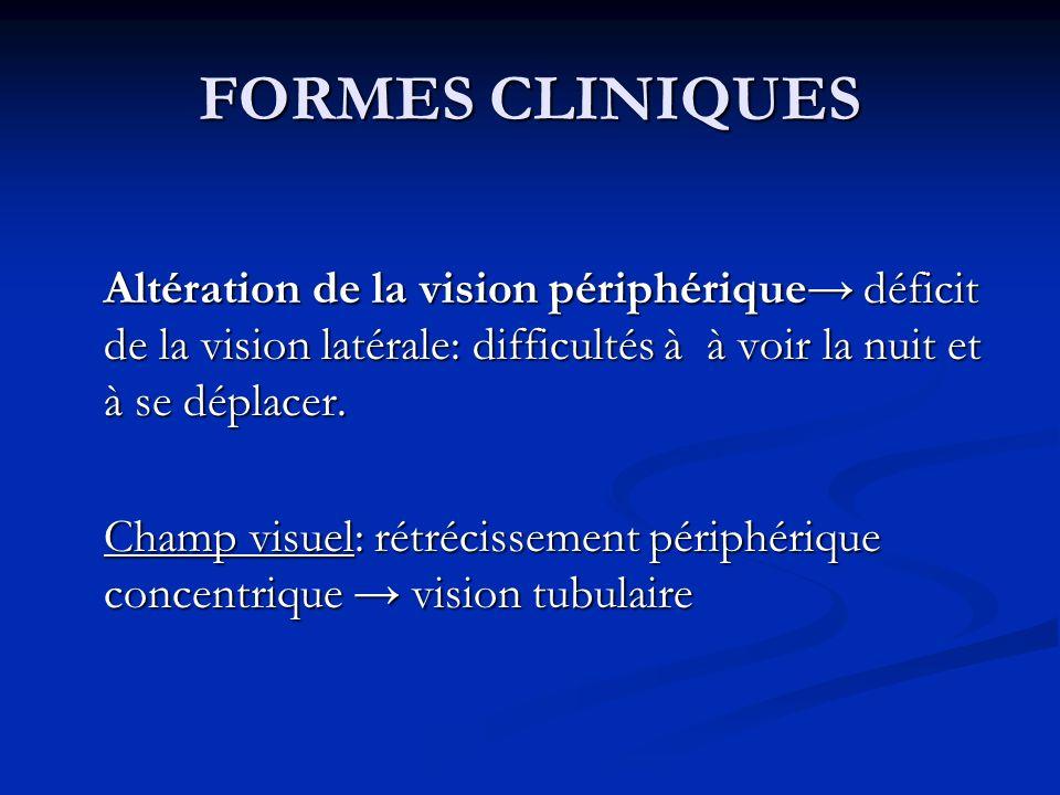 FORMES CLINIQUES Altération de la vision périphérique déficit de la vision latérale: difficultés à à voir la nuit et à se déplacer. Champ visuel: rétr